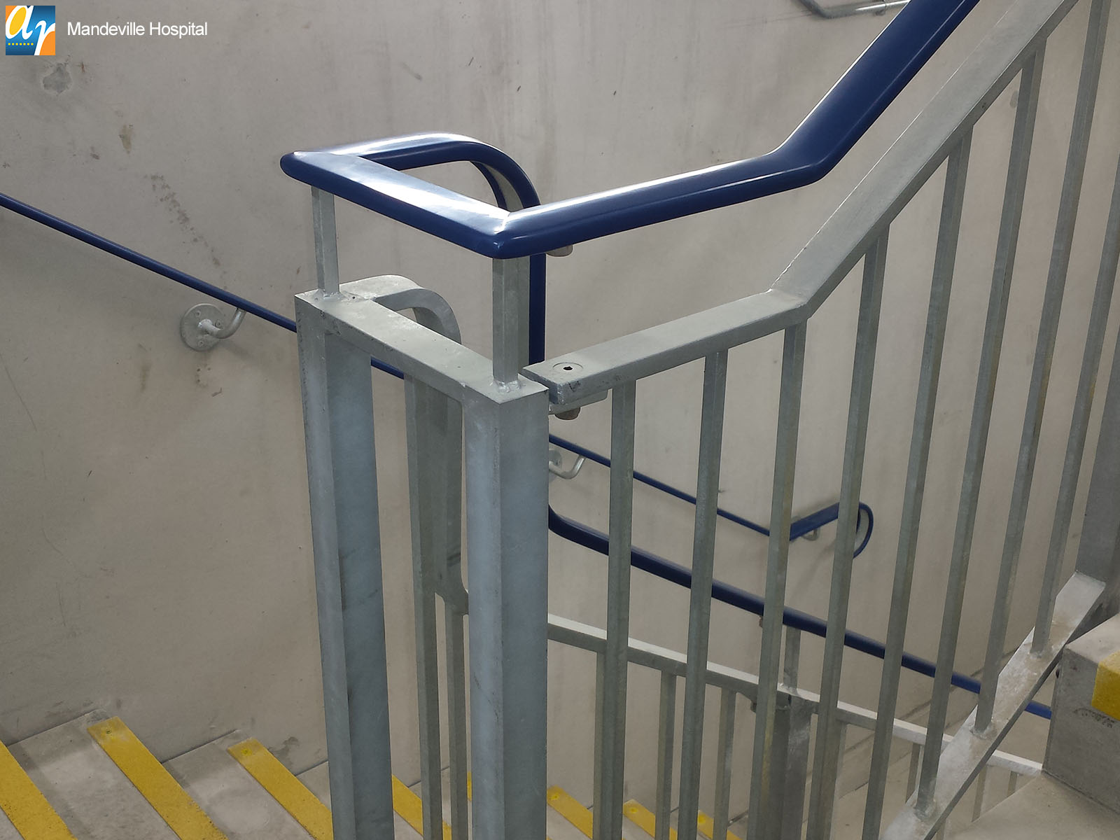 Mandeville hospital stair railings